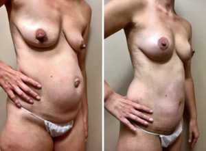 Dr. Kronowitz, Mommy Makeover Patient in Houston, TX.