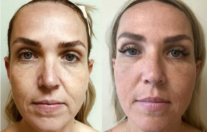 Injectable and Fillers Patient in Houston, Texas by Kronowitz Plastic Surgery