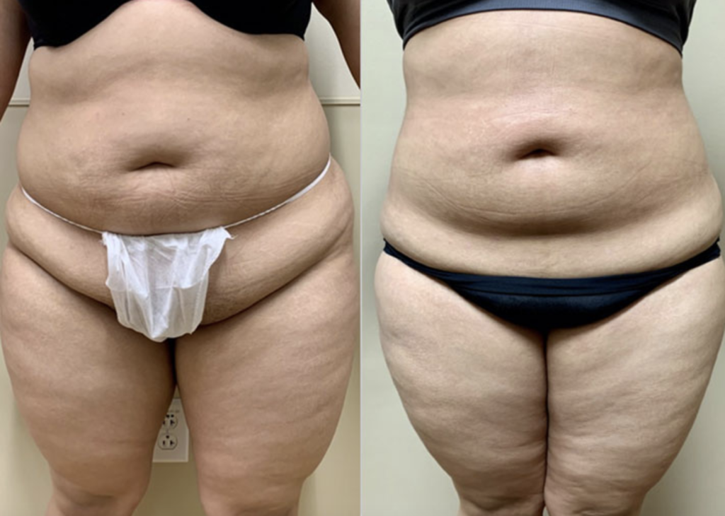 Liposuction patient before and after image in Houston, TX